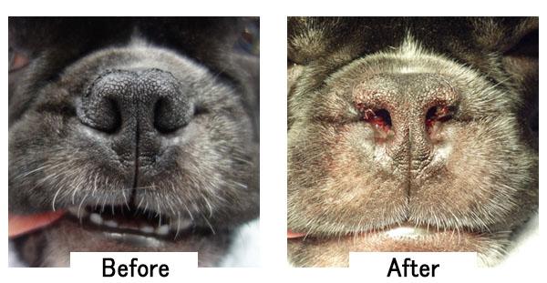 症例①:鼻の穴をしっかりあけるパターン